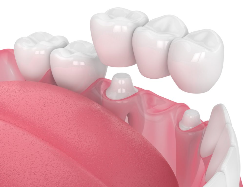 Mouth illustration with teeth showing dental crown example from capital dental in Lincoln Nebraska