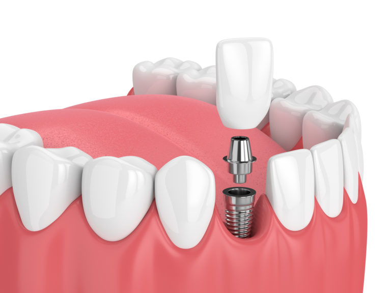 3d rendering of jaw with teeth and dental incisor implant