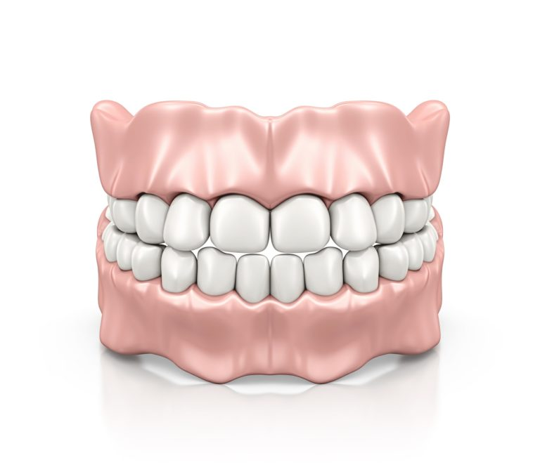 Dentures model including gums and teeth from capital dental in lincoln nebraska