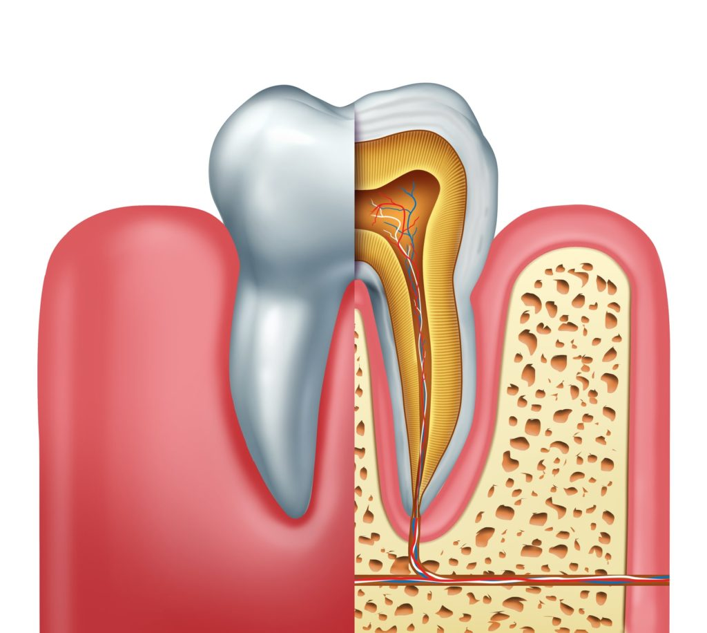 root canal model showing tooth pulp and infection to demonstrate causes for root canals and root canal treatment at capital dental