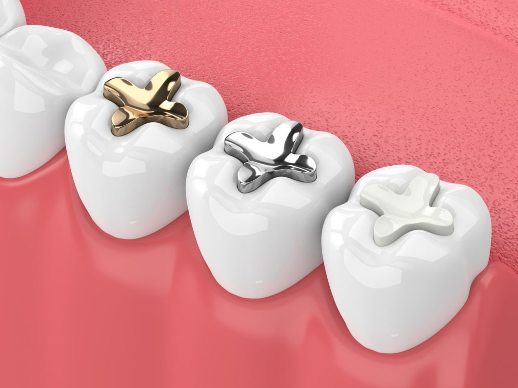 Illustration showing different types of tooth fillings and sealants