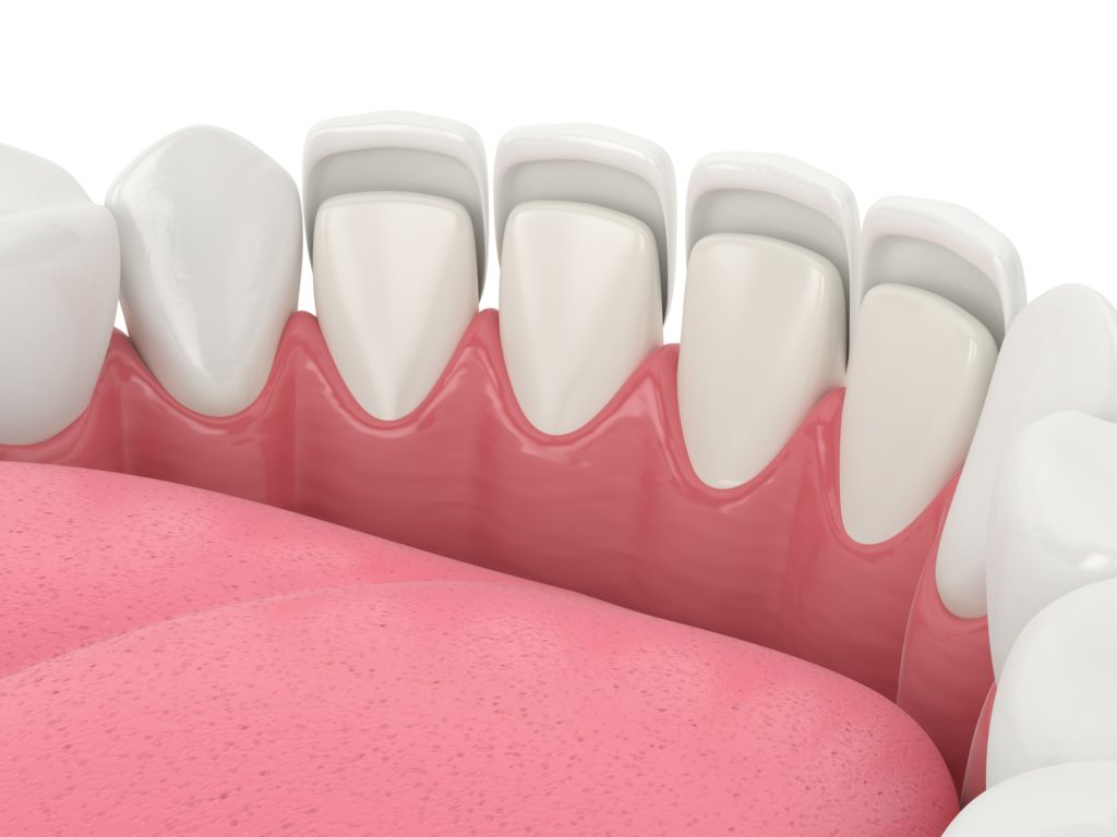 Model of mouth showing teeth with dental veneers to represent capital dental dental veneers services in lincoln nebraska