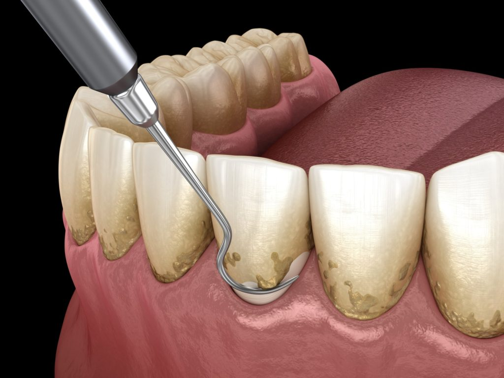 Illustration of a dental pick removing plaque and bacteria from a tooth
