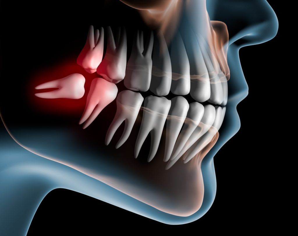 Illustration of a mouth x-ray showing wisdom coming in crooked