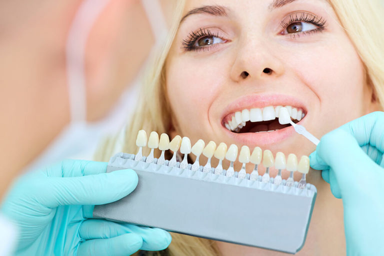 A dentist holds a whitening scale up to a female dental patient's teeth to compare degrees of whiteness