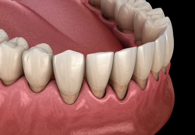 Illustration of a bottom row of teeth showing receding gums in the beginning stage of gum disease and gingivitis